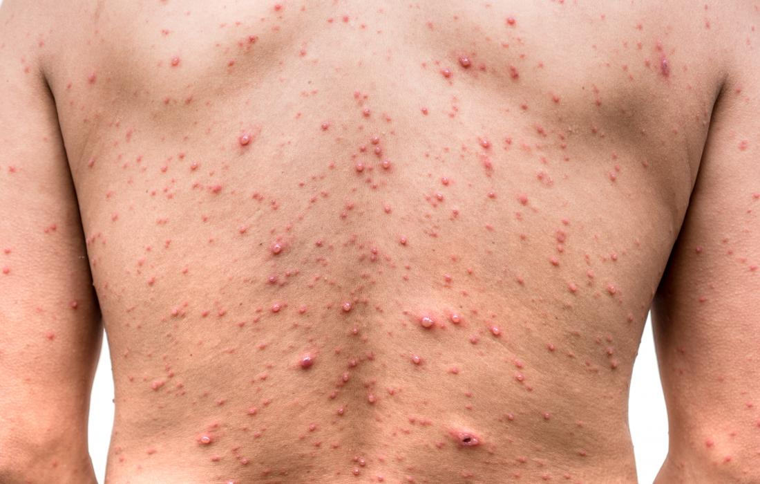 Image result for chicken pox