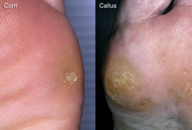 Image result for corns and calluses